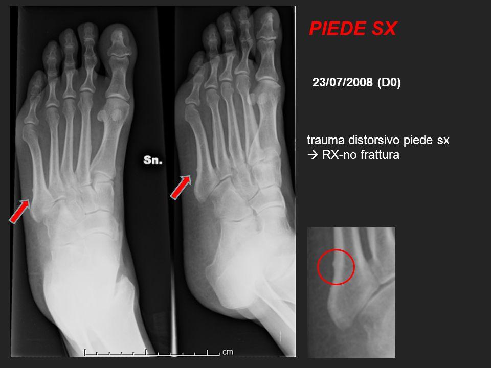 PIEDE SX 23/07/2008 (D0) trauma distorsivo piede sx  RX-no frattura
