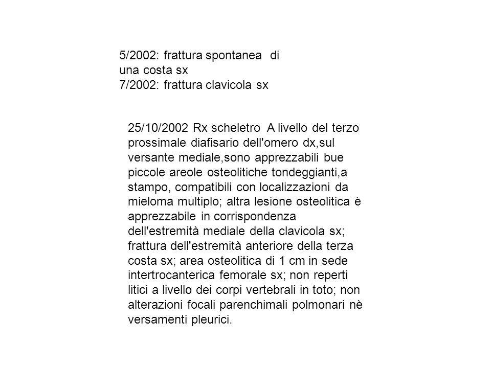 5/2002: frattura spontanea di una costa sx