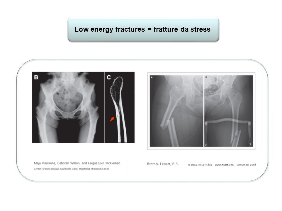 Low energy fractures = fratture da stress