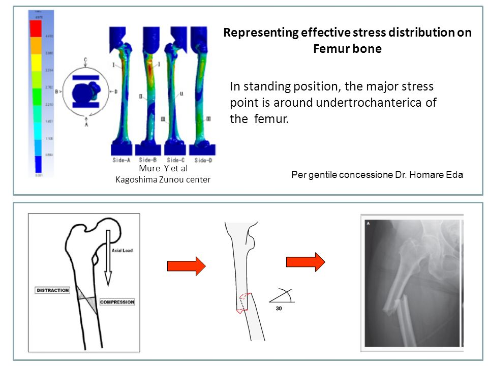 Representing effective stress distribution on Femur bone
