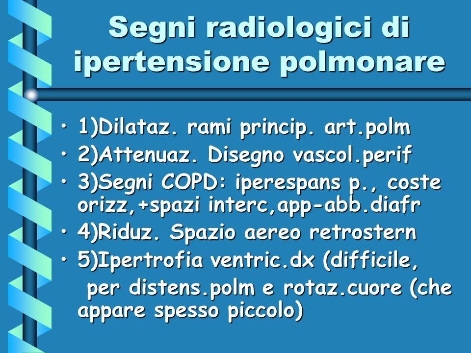Segni radiologici di ipertensione polmonare