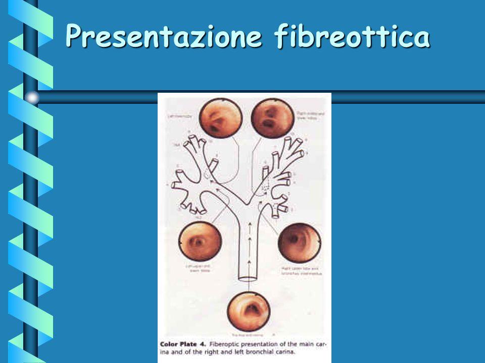 Presentazione fibreottica