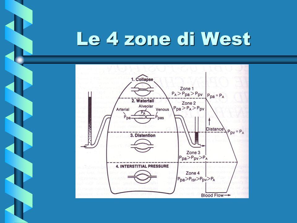 Le 4 zone di West