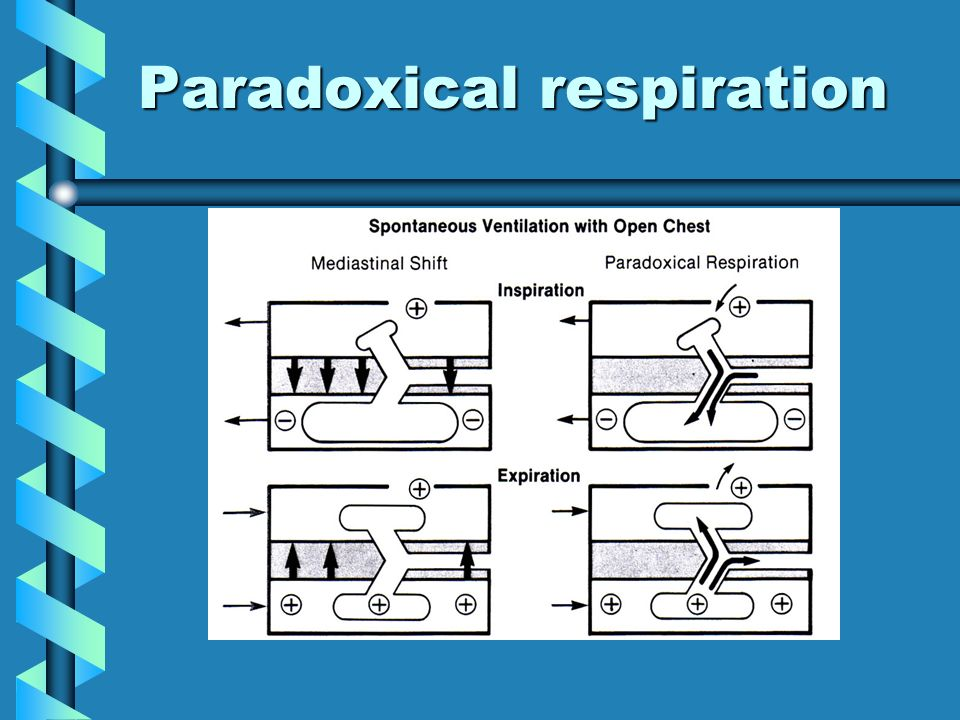Paradoxical respiration