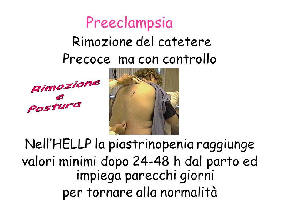 Preeclampsia Rimozione del catetere Precoce ma con controllo