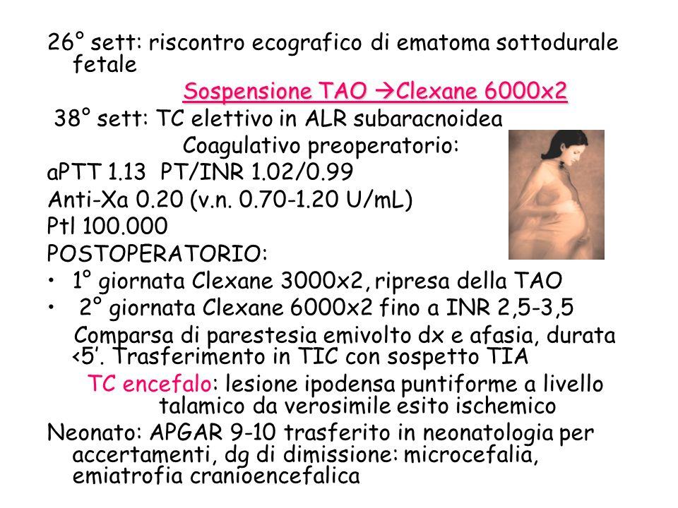 26° sett: riscontro ecografico di ematoma sottodurale fetale