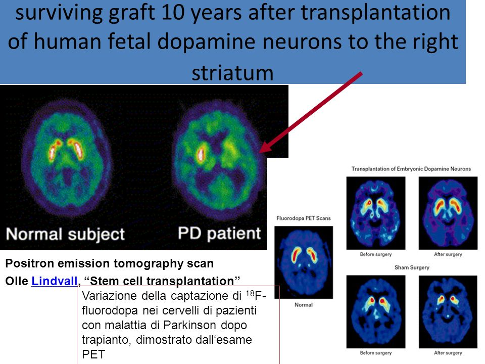 surviving graft 10 years after transplantation of human fetal dopamine neurons to the right striatum