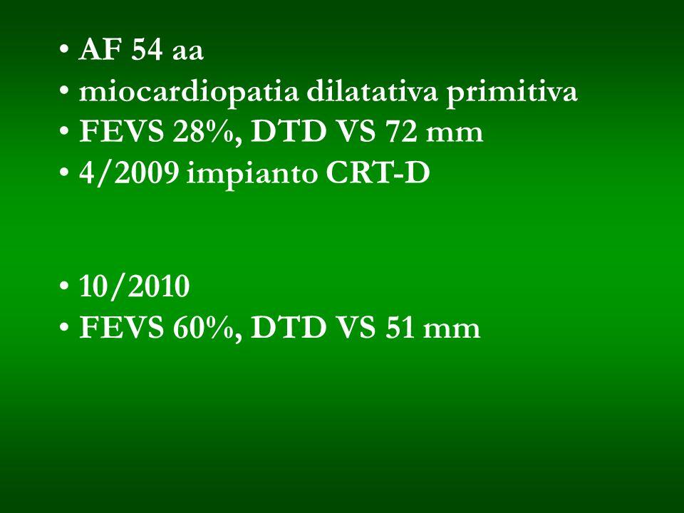 AF 54 aamiocardiopatia dilatativa primitiva. FEVS 28%, DTD VS 72 mm. 4/2009 impianto CRT-D. 10/2010.