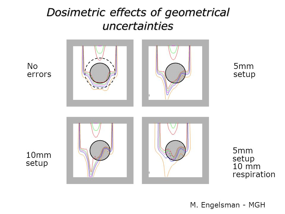 Dosimetric effects of geometrical uncertainties