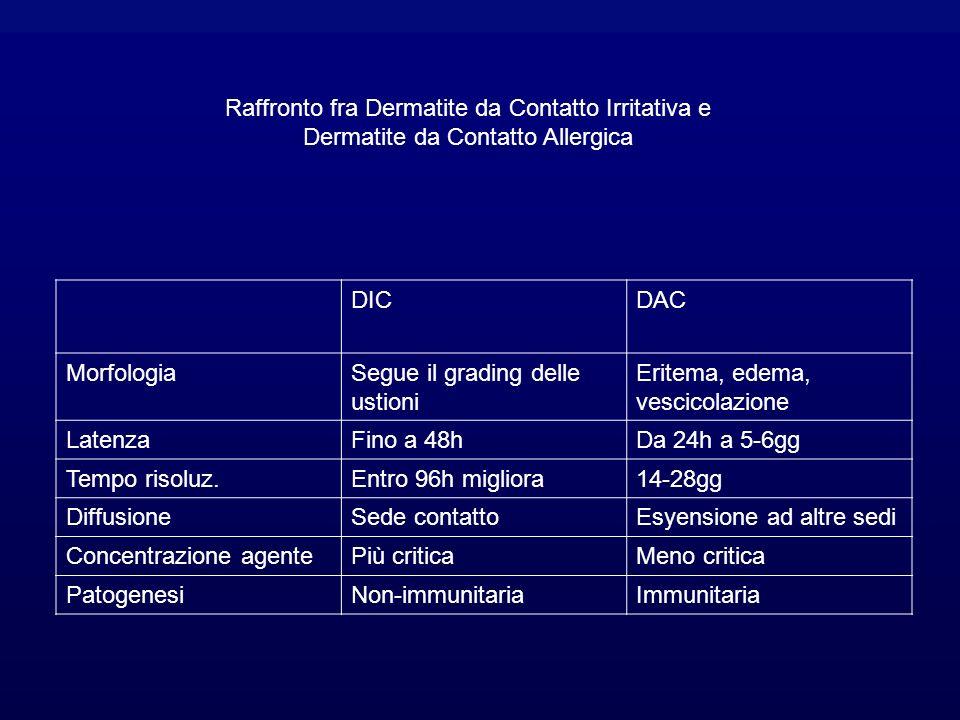Raffronto fra Dermatite da Contatto Irritativa e Dermatite da Contatto Allergica