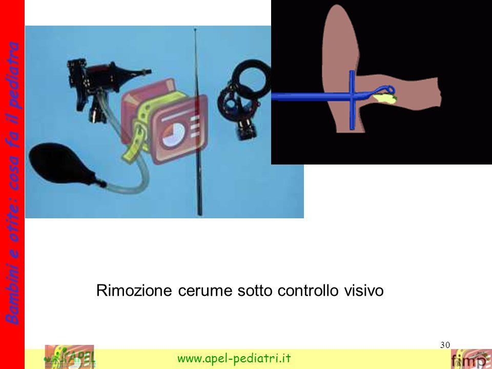 Rimozione cerume sotto controllo visivo