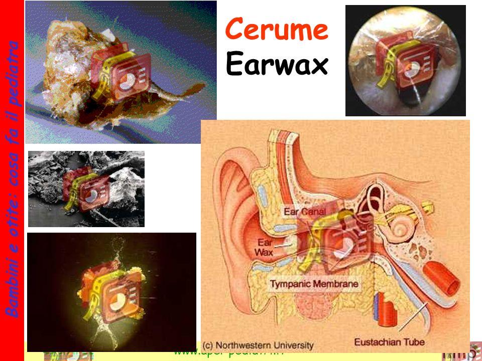 Cerume Earwax