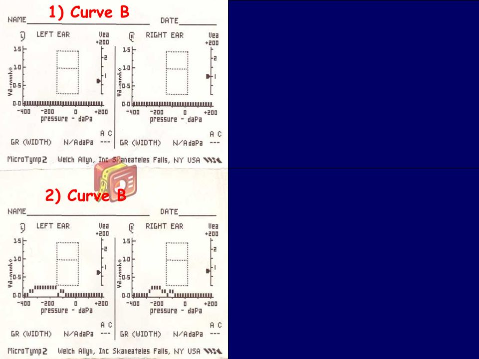 1) Curve B 3) Curva B Curve A 2) Curve B 4) Curve A