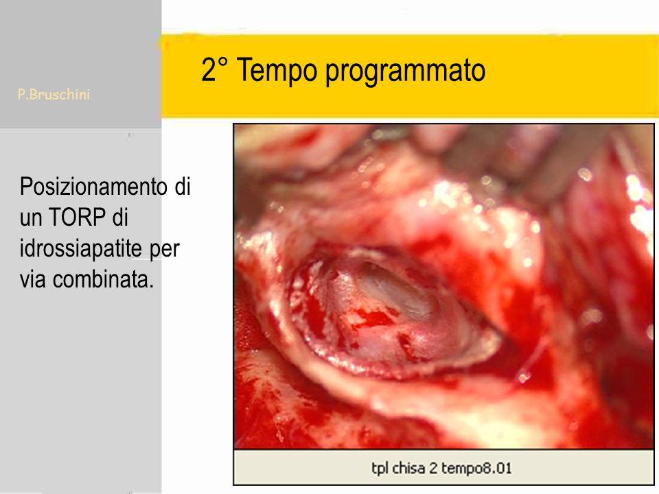 2° Tempo programmato P.Bruschini Posizionamento di un TORP di idrossiapatite per via combinata.