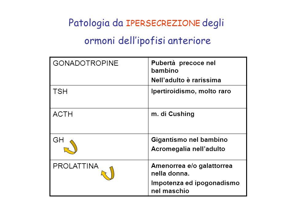 Patologia da IPERSECREZIONE degli ormoni dell'ipofisi anteriore