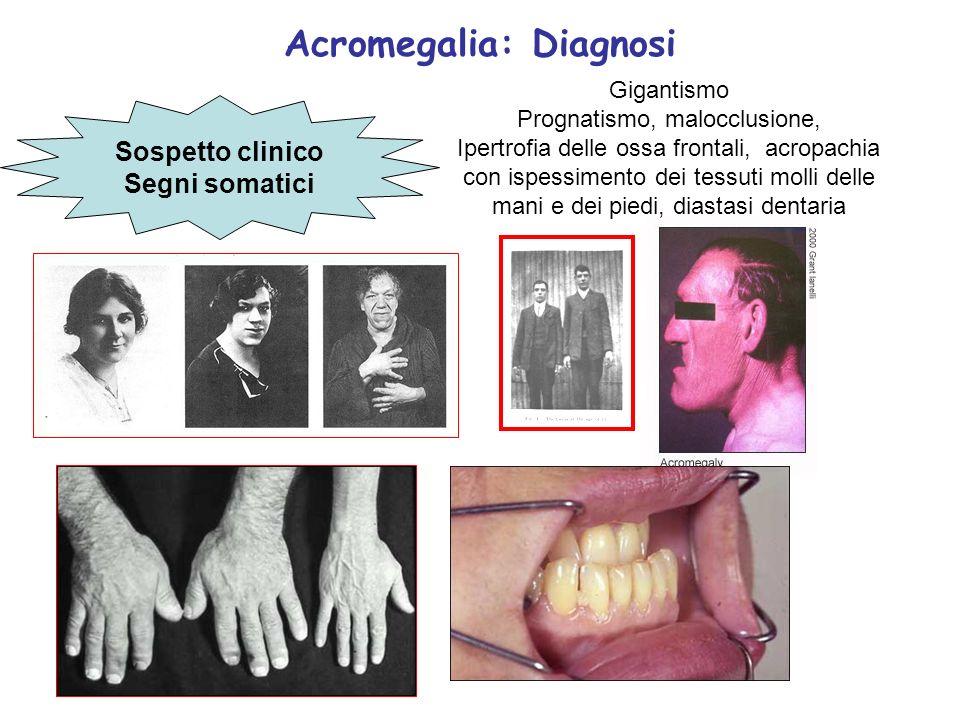 Acromegalia: Diagnosi