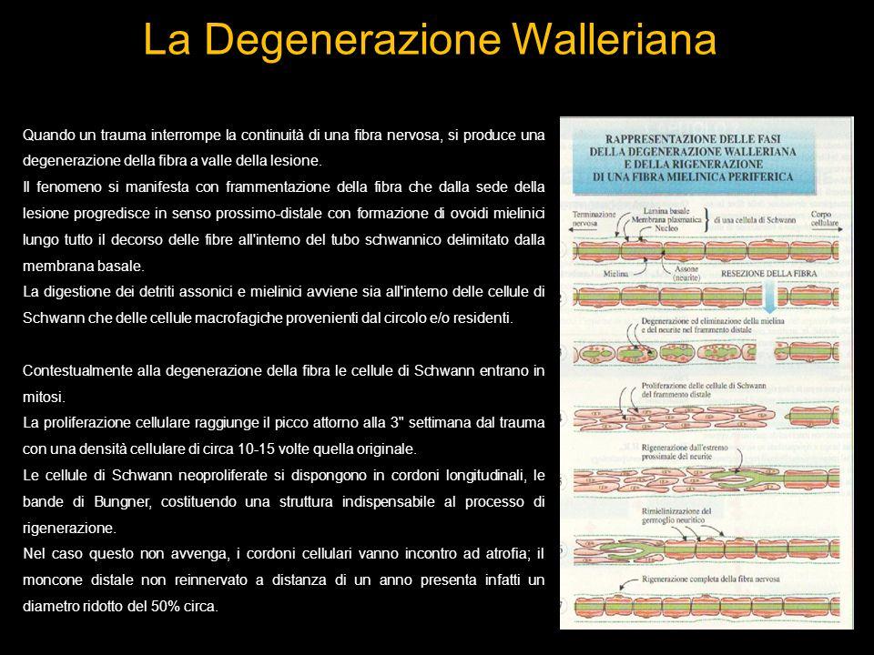 La Degenerazione Walleriana