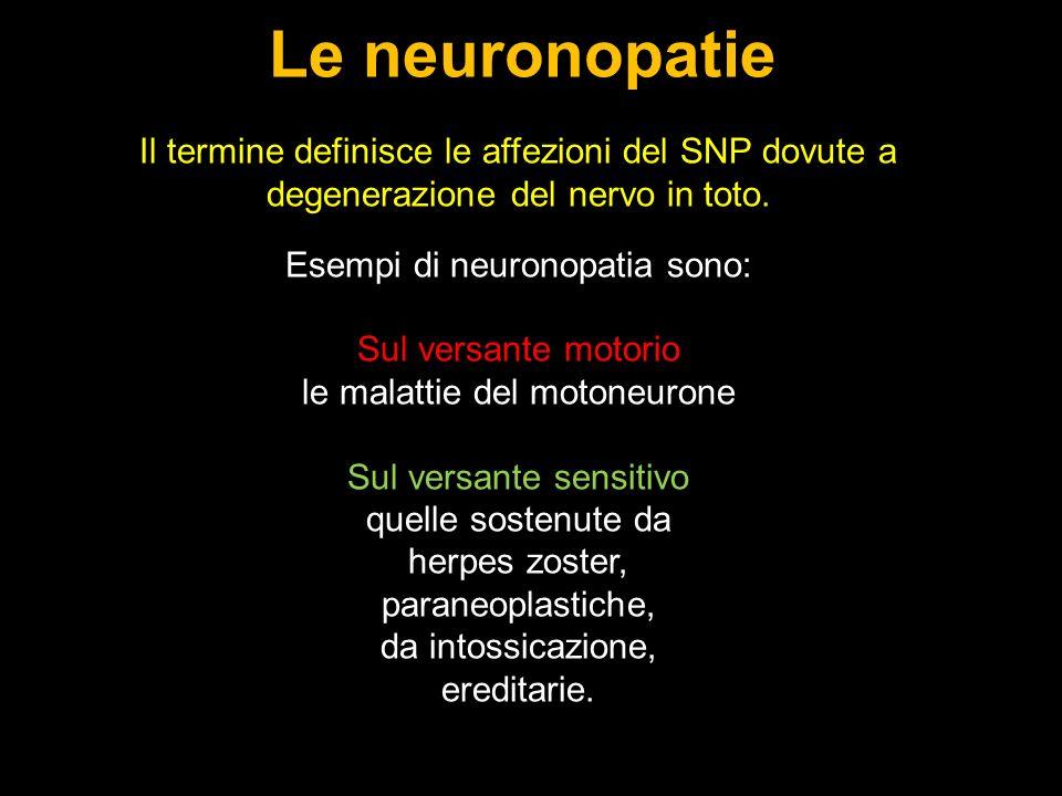 Le neuronopatie Il termine definisce le affezioni del SNP dovute a degenerazione del nervo in toto.
