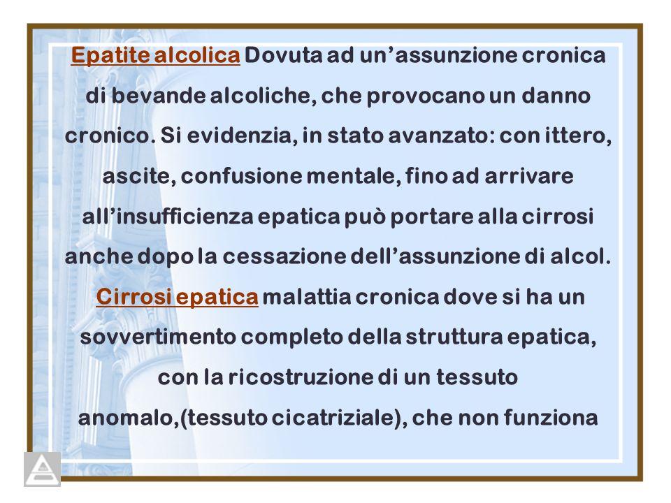 Epatite alcolica Dovuta ad un'assunzione cronica di bevande alcoliche, che provocano un danno cronico.