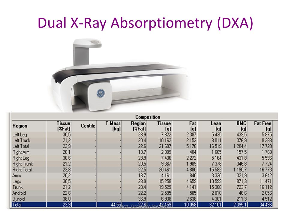 Dual X-Ray Absorptiometry (DXA)
