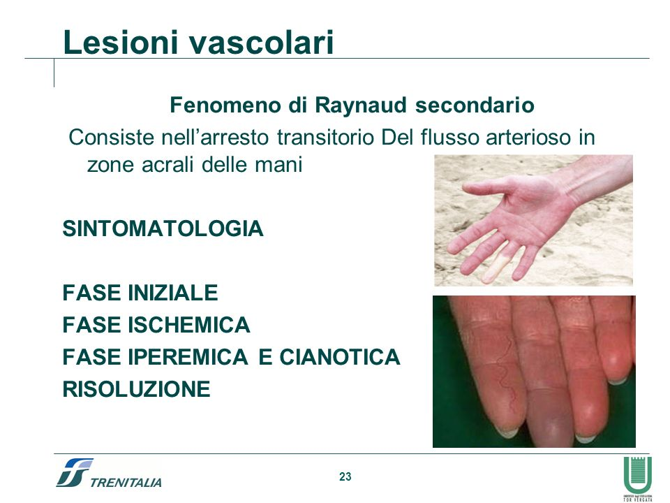 Fenomeno di Raynaud secondario