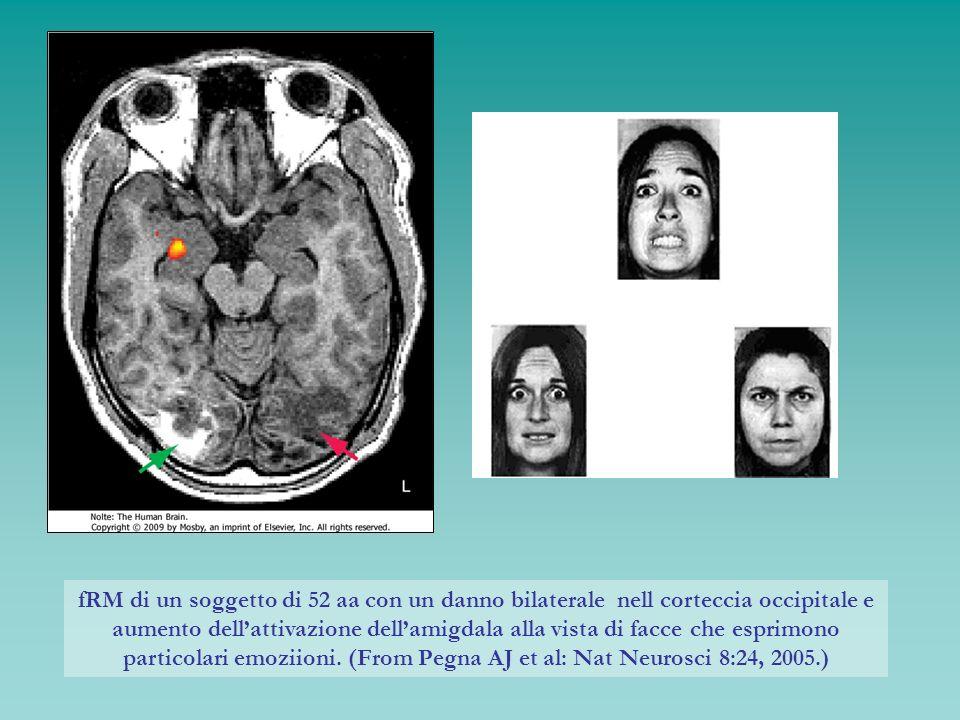 fRM di un soggetto di 52 aa con un danno bilaterale nell corteccia occipitale e aumento dell'attivazione dell'amigdala alla vista di facce che esprimono particolari emoziioni.