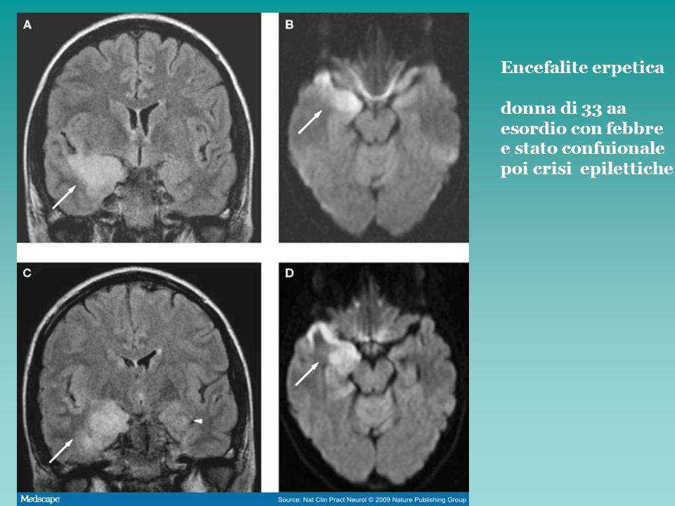 Encefalite erpetica donna di 33 aa esordio con febbre e stato confuionale poi crisi epilettiche