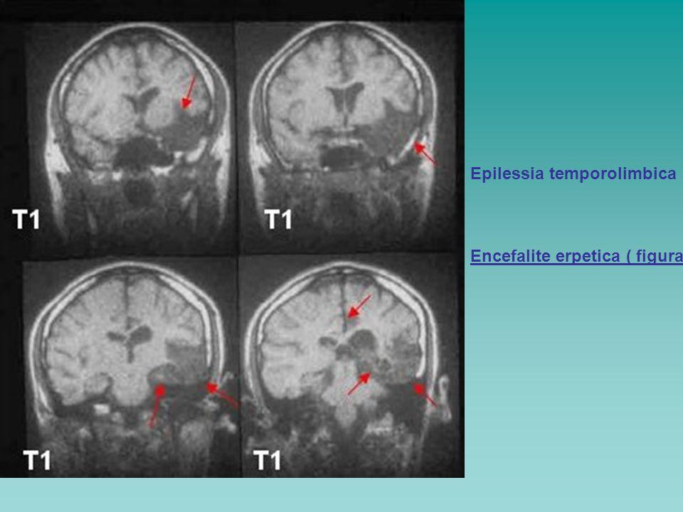 Epilessia temporolimbica