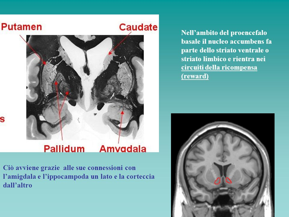 Nell'ambito del proencefalo basale il nucleo accumbens fa parte dello striato ventrale o