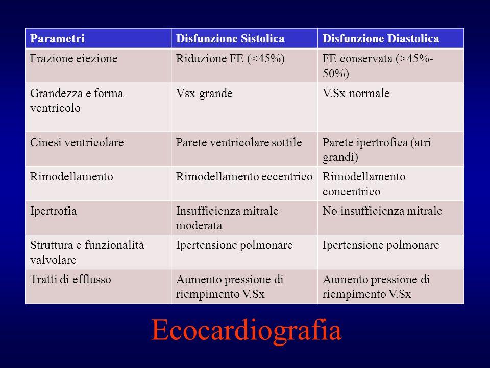 Ecocardiografia Parametri Disfunzione Sistolica Disfunzione Diastolica