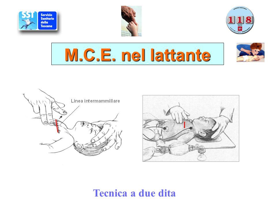 M.C.E. nel lattante Tecnica a due dita