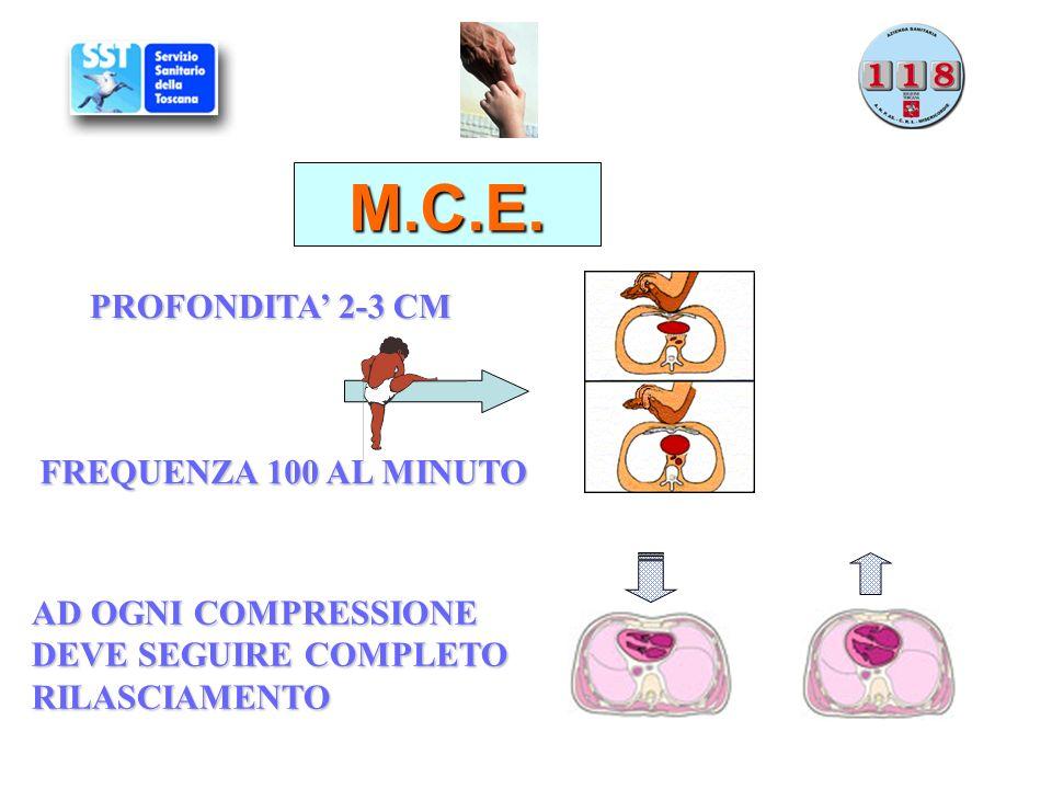 M.C.E. PROFONDITA' 2-3 CM FREQUENZA 100 AL MINUTO