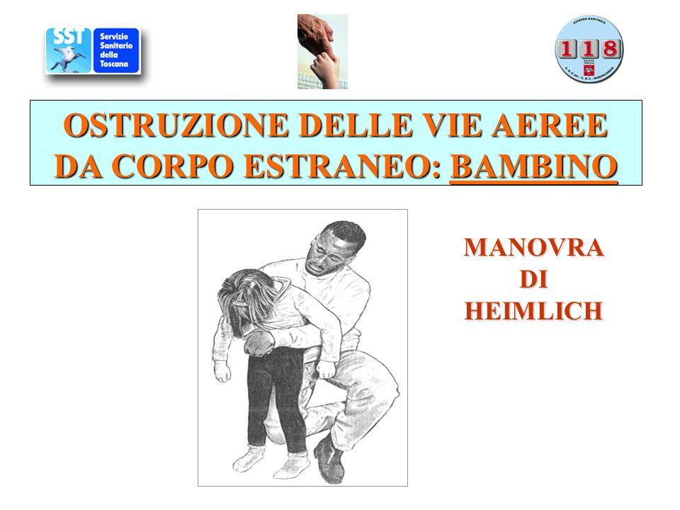 OSTRUZIONE DELLE VIE AEREE DA CORPO ESTRANEO: BAMBINO