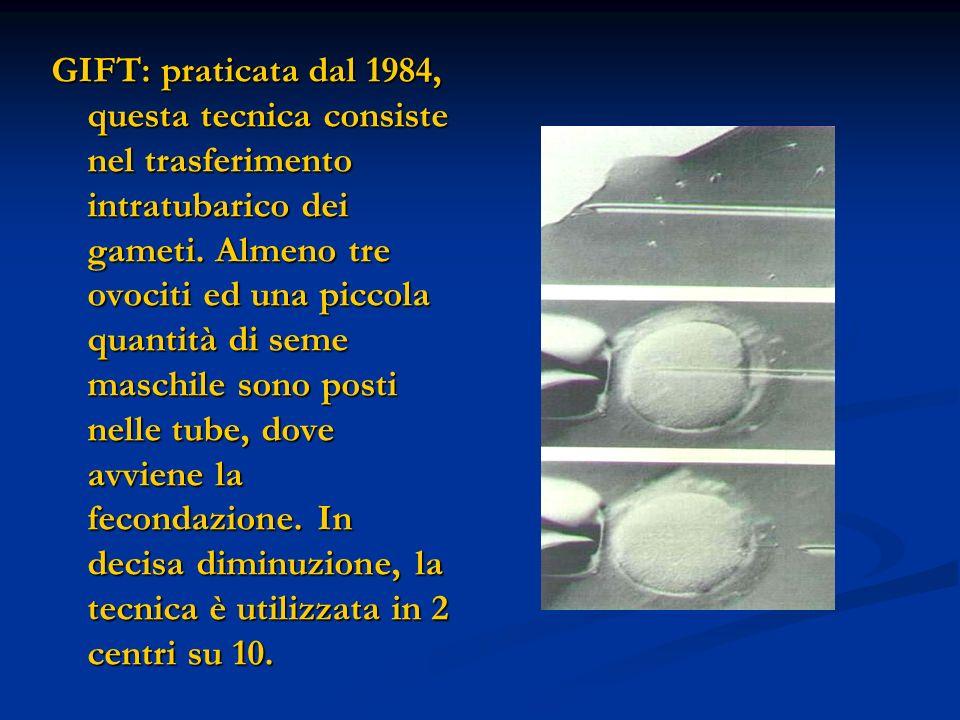 GIFT: praticata dal 1984, questa tecnica consiste nel trasferimento intratubarico dei gameti.