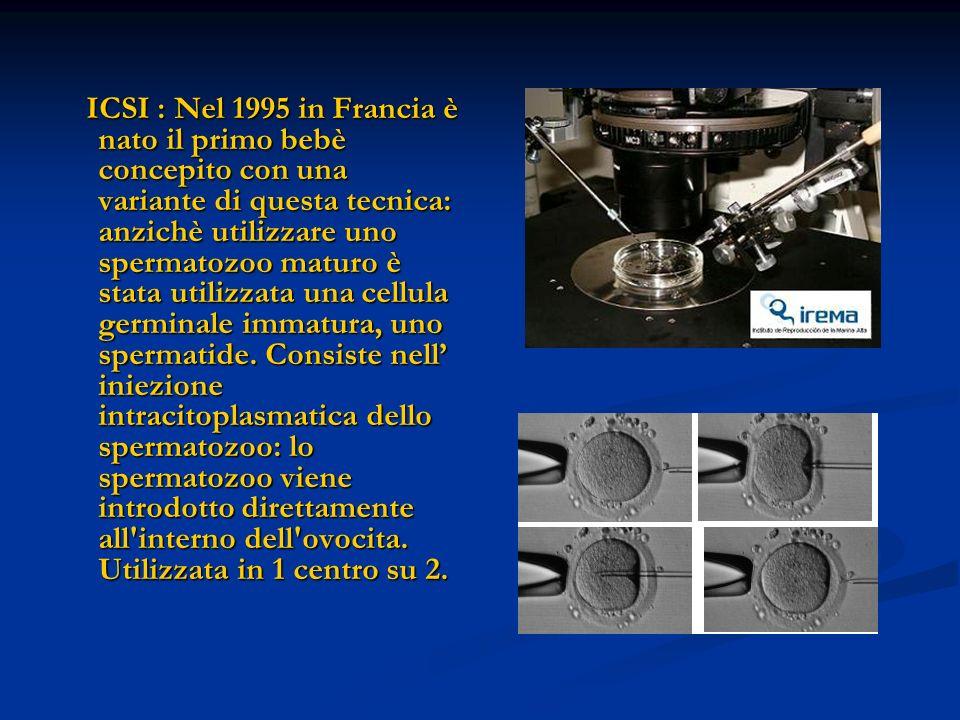 ICSI : Nel 1995 in Francia è nato il primo bebè concepito con una variante di questa tecnica: anzichè utilizzare uno spermatozoo maturo è stata utilizzata una cellula germinale immatura, uno spermatide.