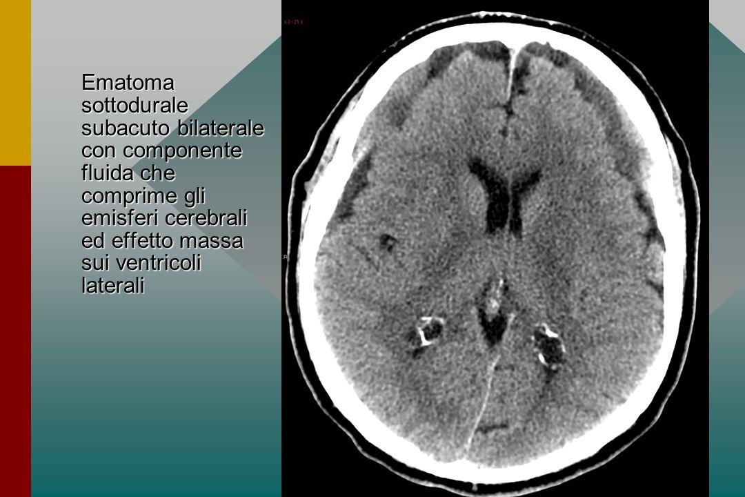 Ematoma sottodurale subacuto bilaterale con componente fluida che comprime gli emisferi cerebrali ed effetto massa sui ventricoli laterali