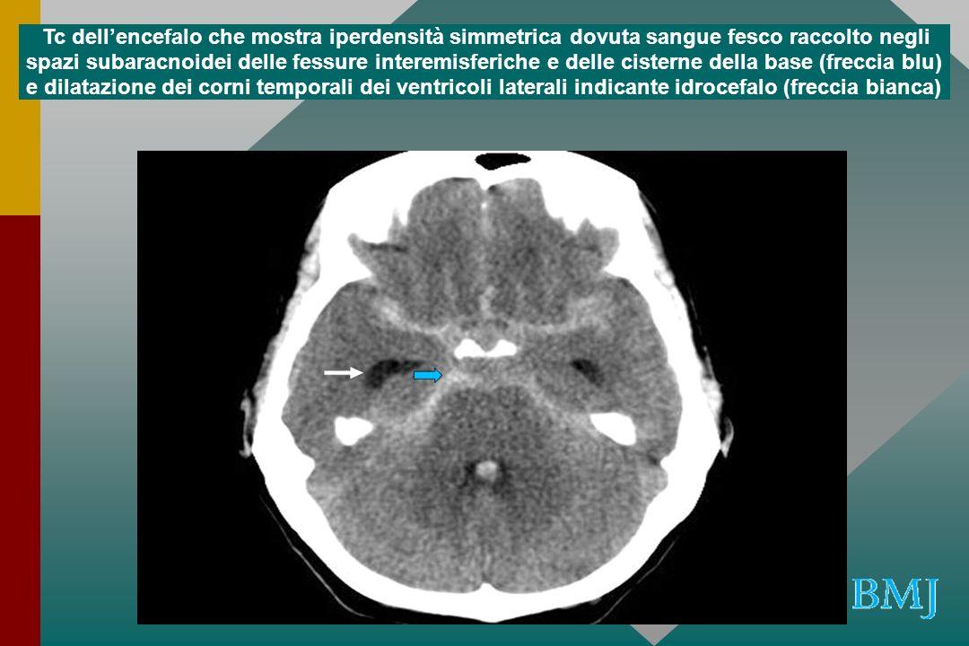 Tc dell'encefalo che mostra iperdensità simmetrica dovuta sangue fesco raccolto negli spazi subaracnoidei delle fessure interemisferiche e delle cisterne della base (freccia blu) e dilatazione dei corni temporali dei ventricoli laterali indicante idrocefalo (freccia bianca)