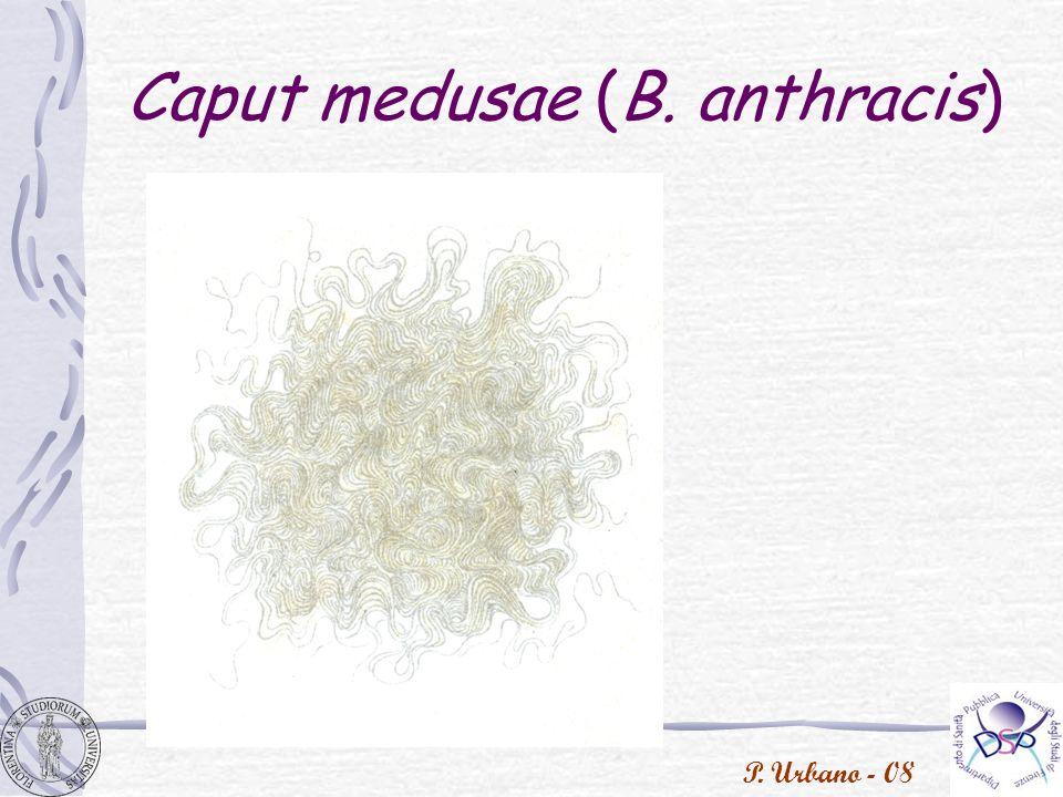 Caput medusae (B. anthracis)