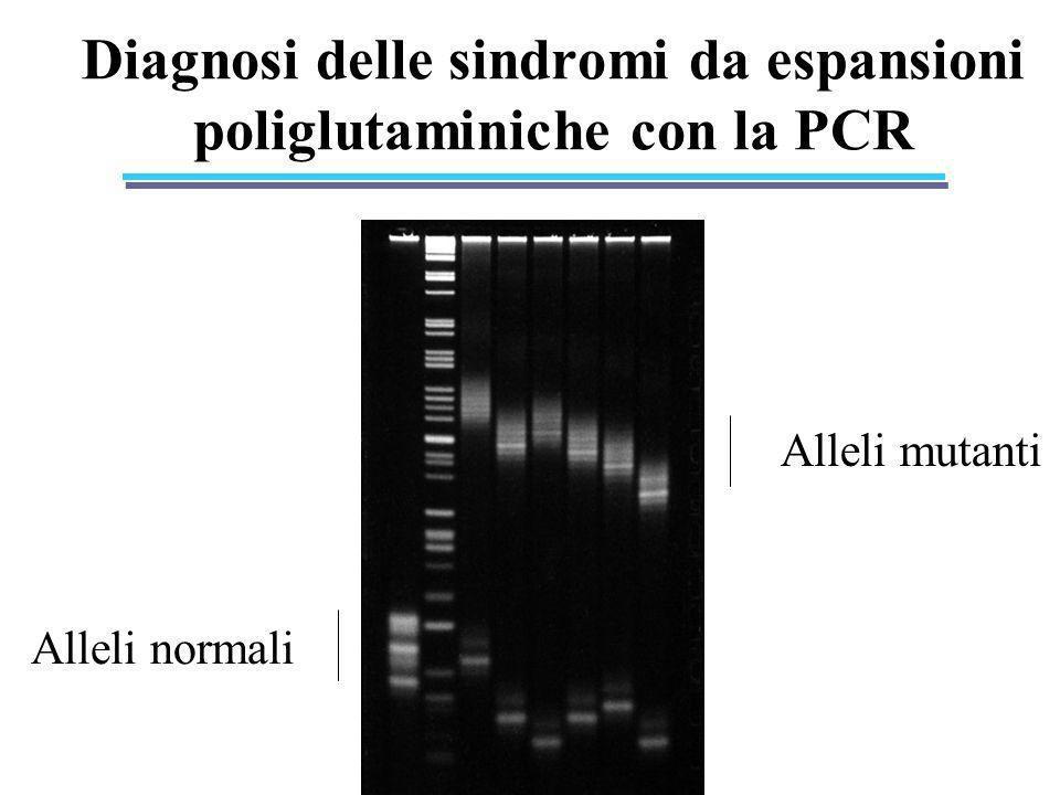 Diagnosi delle sindromi da espansioni poliglutaminiche con la PCR