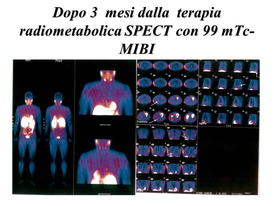 Dopo 3 mesi dalla terapia radiometabolica SPECT con 99 mTc-MIBI