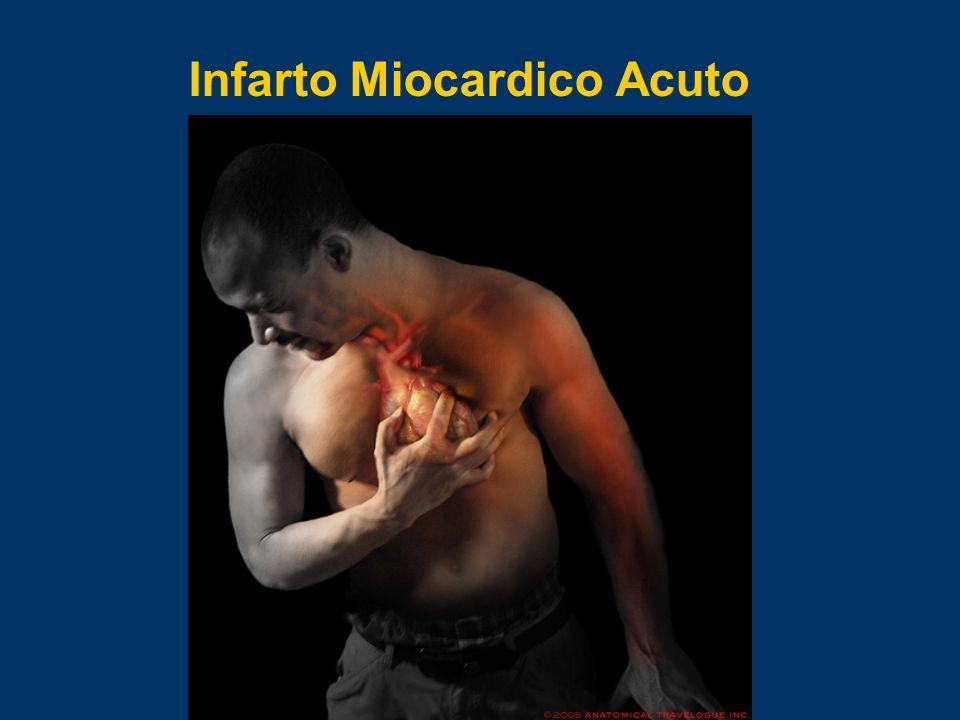 Infarto Miocardico Acuto