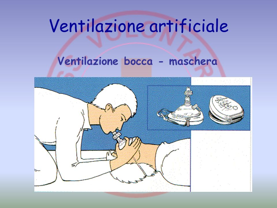 Ventilazione artificiale