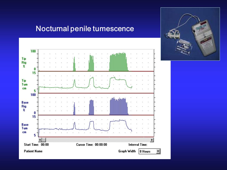 Nocturnal penile tumescence