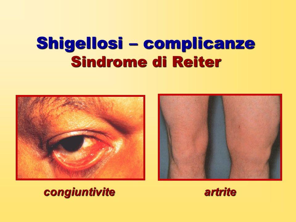 Shigellosi – complicanze Sindrome di Reiter