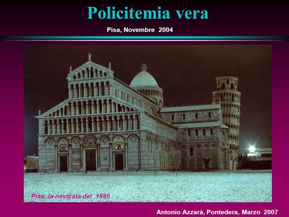 Policitemia vera Pisa, Novembre 2004 Pisa, la nevicata del 1985