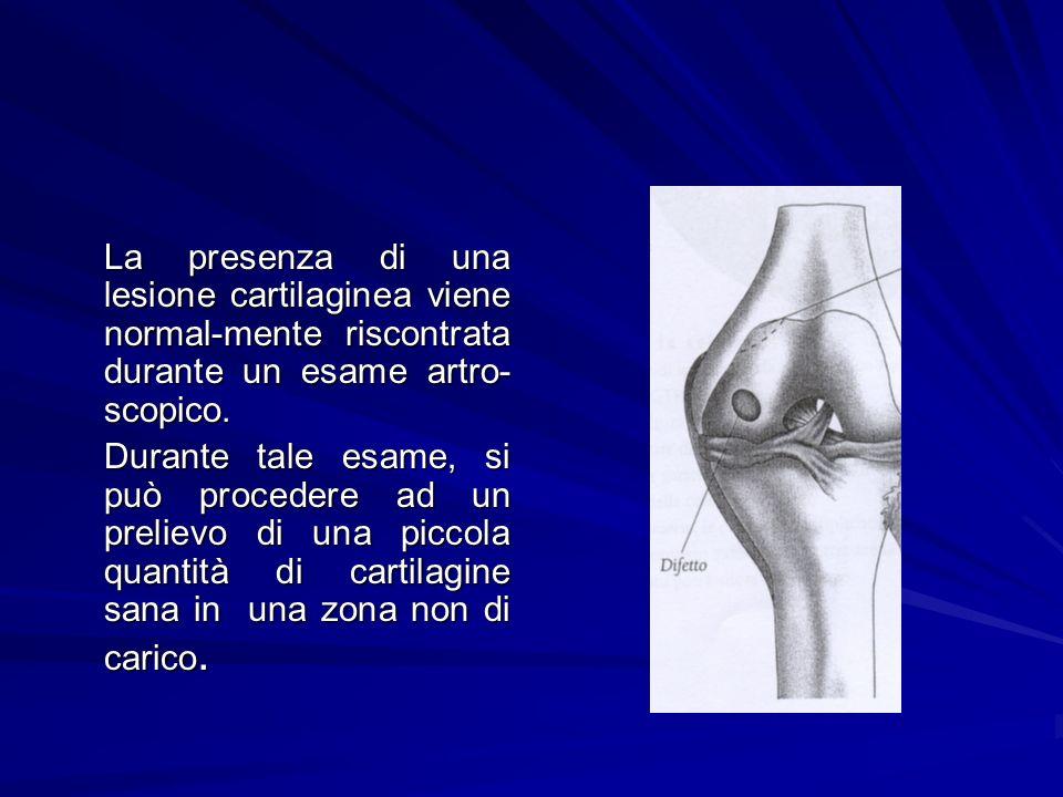 La presenza di una lesione cartilaginea viene normal-mente riscontrata durante un esame artro-scopico.
