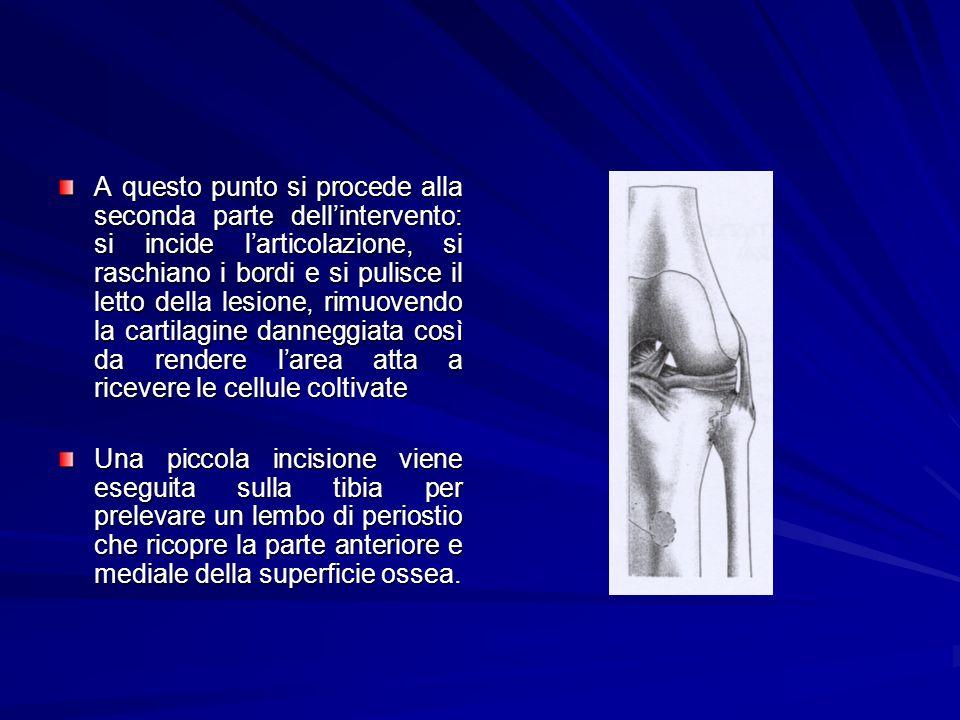 A questo punto si procede alla seconda parte dell'intervento: si incide l'articolazione, si raschiano i bordi e si pulisce il letto della lesione, rimuovendo la cartilagine danneggiata così da rendere l'area atta a ricevere le cellule coltivate