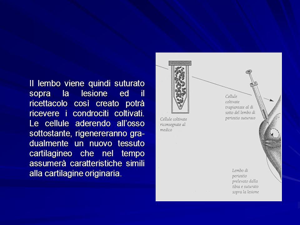 Il lembo viene quindi suturato sopra la lesione ed il ricettacolo così creato potrà ricevere i condrociti coltivati.