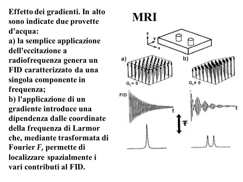 MRI Effetto dei gradienti. In alto sono indicate due provette d acqua: