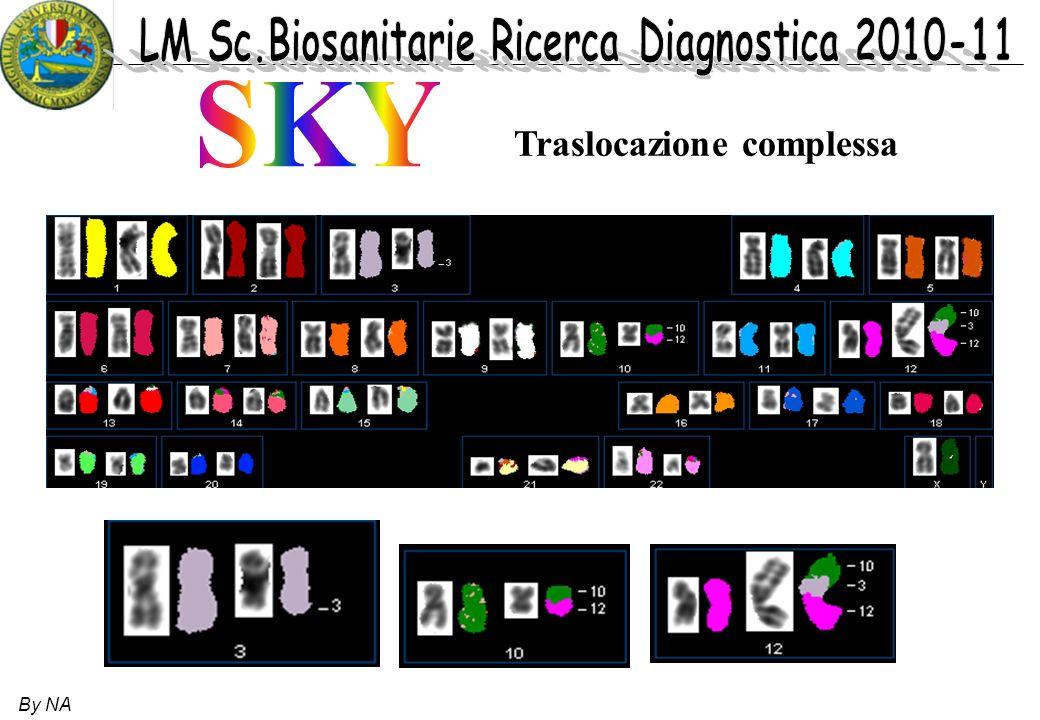 SKY Traslocazione complessa By NA